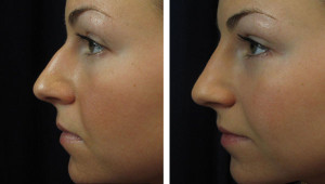 non-surgical-rhinoplasty-6