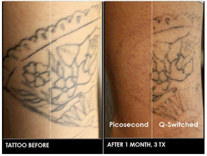 Kitchener-Laser-Tattoo-Removal
